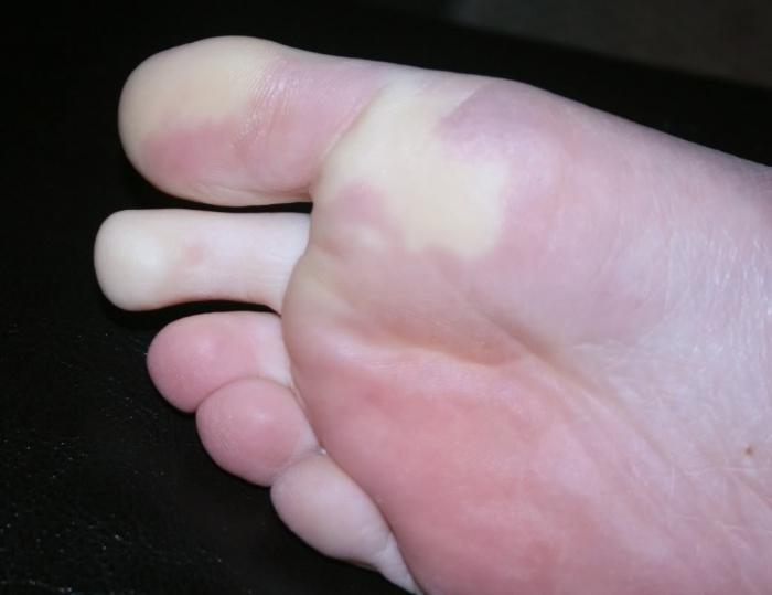Стоит ли беспокоиться из-за холодных ног: 10 возможных причин симптома  — фото 1