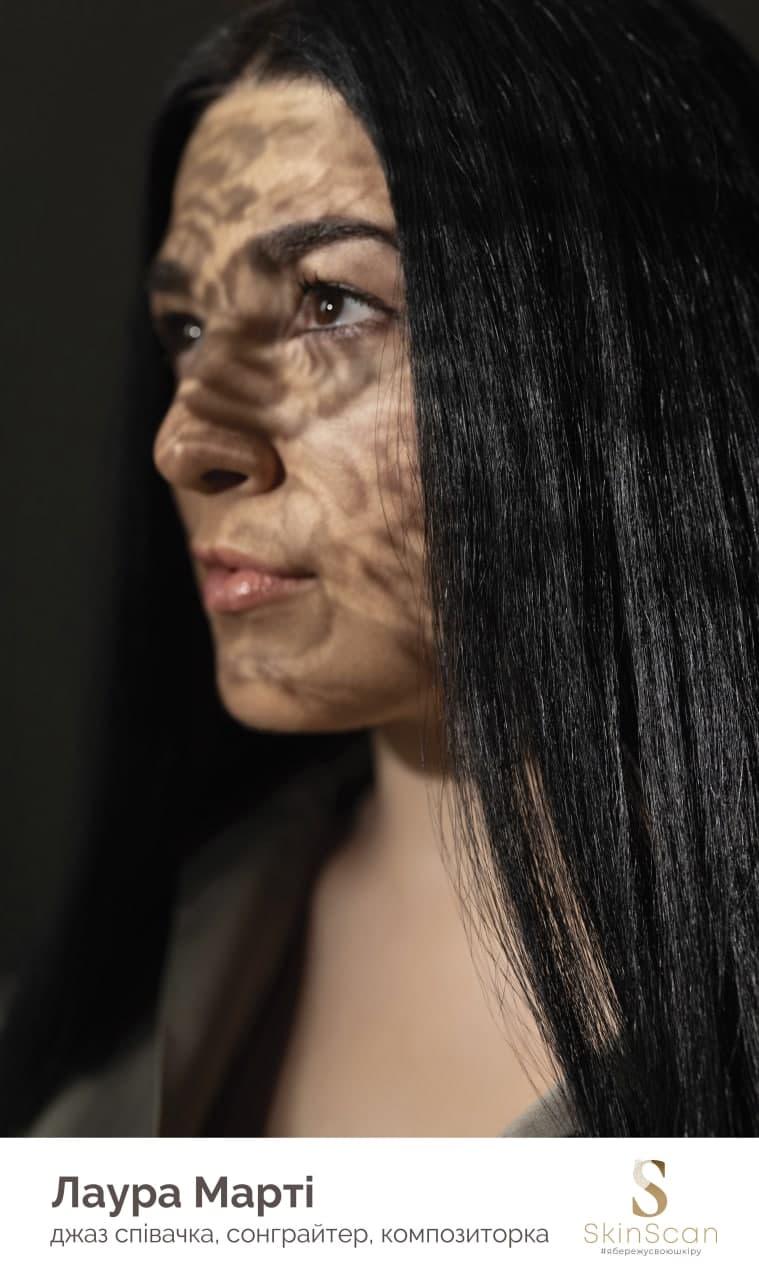 Бесплатная диагностика родинок в рамках социального проекта SkinScan — фото 5