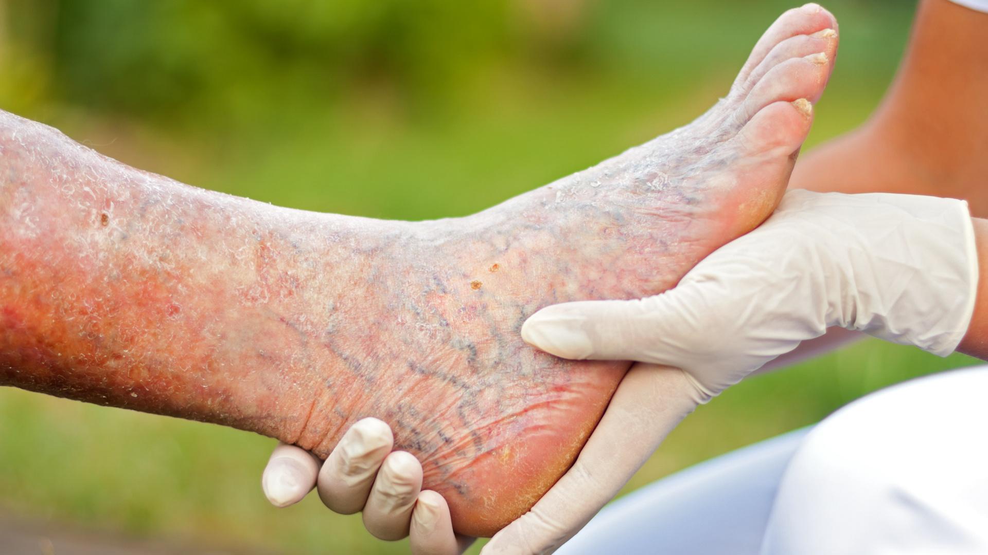 Стоит ли беспокоиться из-за холодных ног: 10 возможных причин симптома  — фото 3
