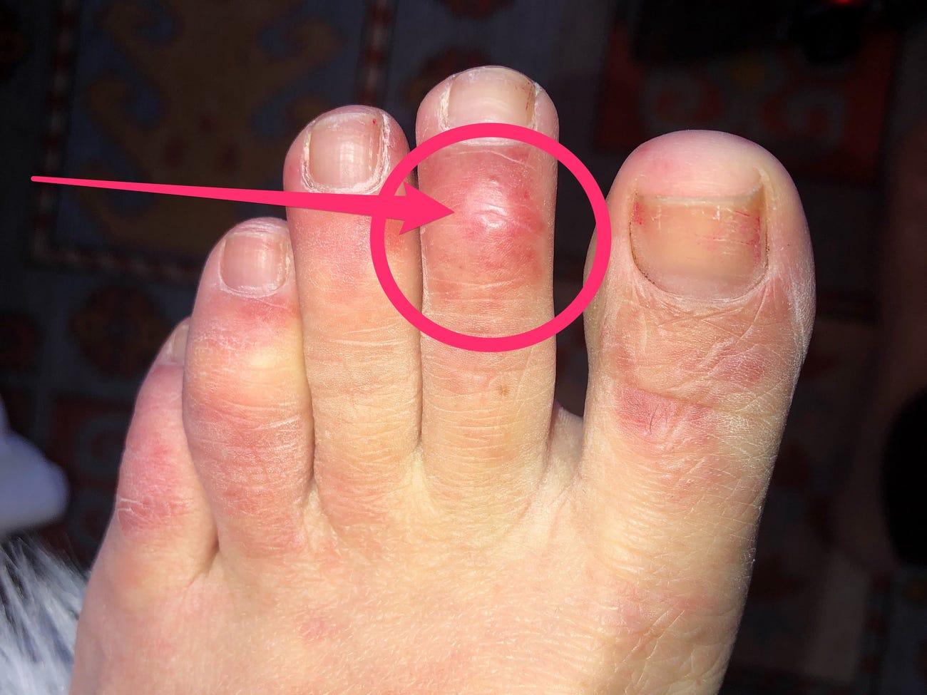 Стоит ли беспокоиться из-за холодных ног: 10 возможных причин симптома  — фото 2