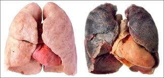 Всемирный день без табака: почему нужно отказаться от курения прямо сейчас — фото 2