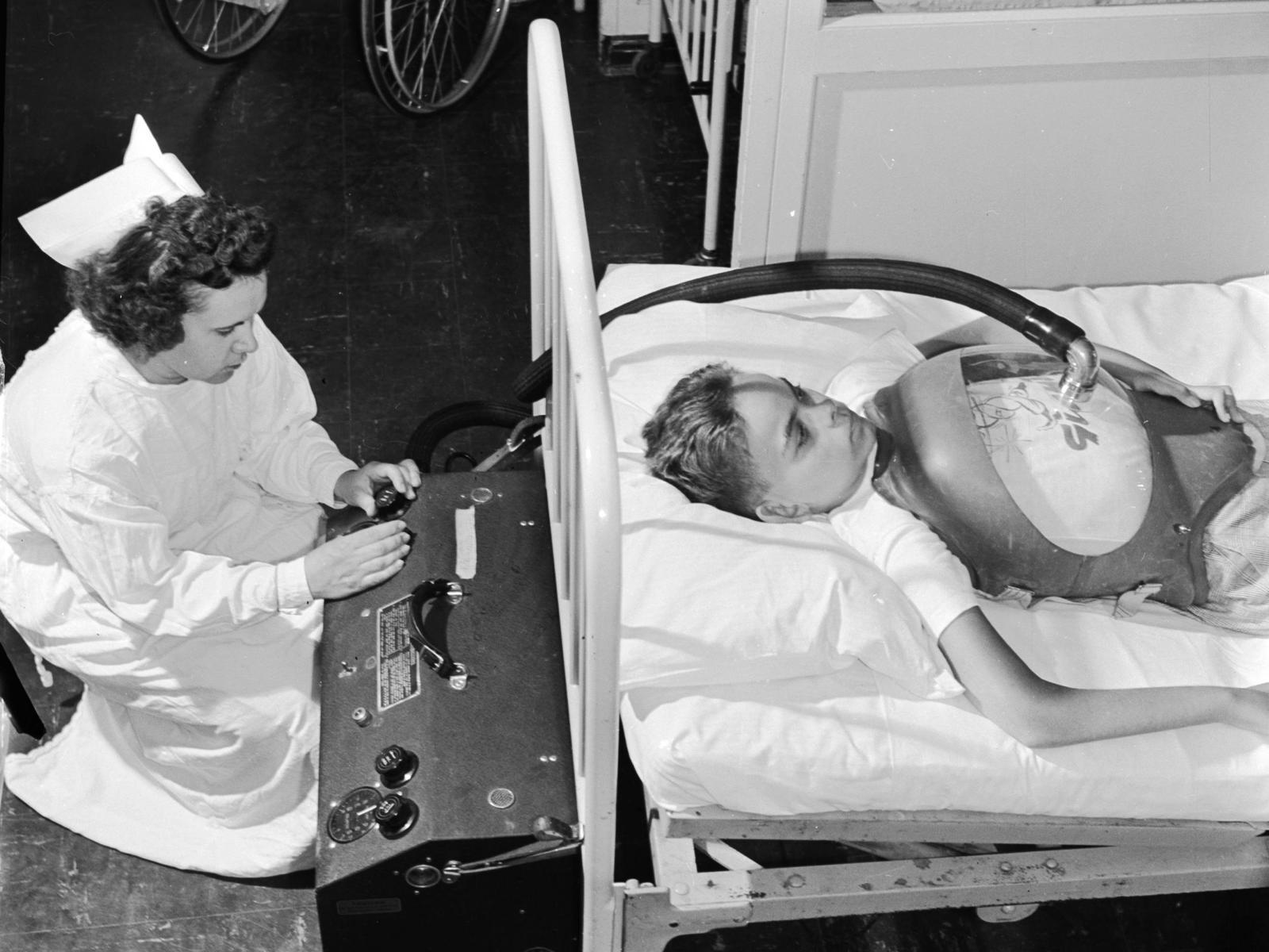 Полиомиелит — симптомы и распространение заболевания. Кто в группе риска — фото 3